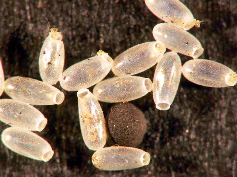 как выглядят яйца паразитов у человека фото